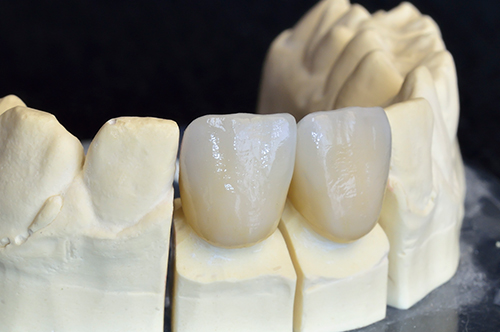 Saugus Dental Crowns